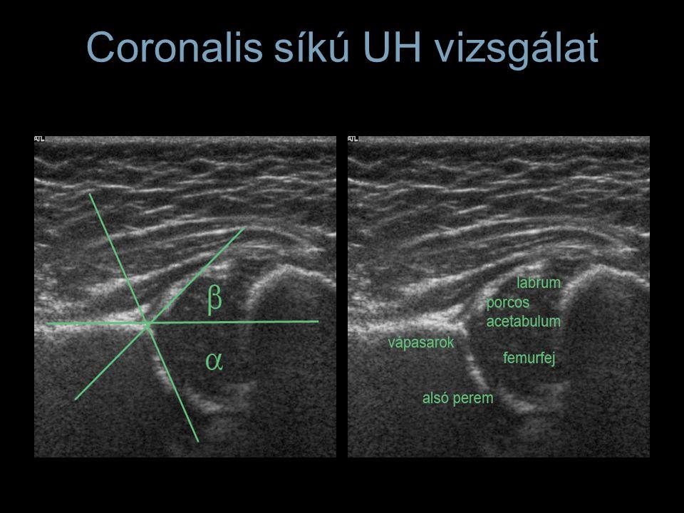 Coronalis síkú UH vizsgálat