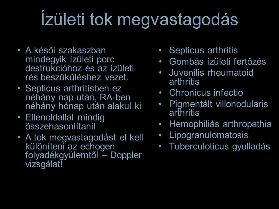 Ízületi tok megvastagodás Septicus arthritis Gombás ízületi fertőzés Juvenilis rheumatoid arthritis Chronicus infectio Pigmentált villonodularis arthritis Hemophiliás arthropathia Lipogranulomatosis Tuberculoticus gyulladás A késői szakaszban mindegyik ízületi porc destrukcióhoz és az ízületi rés beszűküléshez vezet.