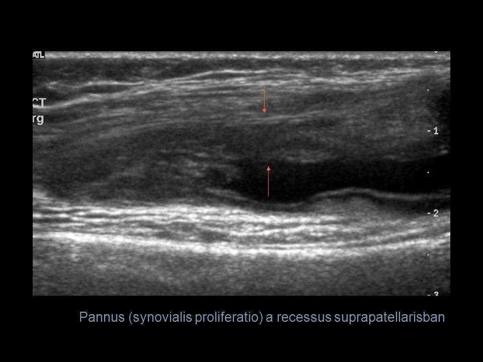 Pannus (synovialis proliferatio) a recessus suprapatellarisban