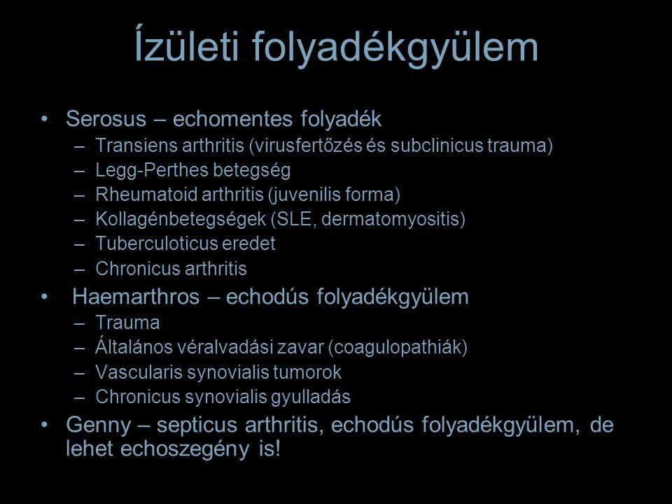 Ízületi folyadékgyülem Serosus – echomentes folyadék –Transiens arthritis (virusfertőzés és subclinicus trauma) –Legg-Perthes betegség –Rheumatoid arthritis (juvenilis forma) –Kollagénbetegségek (SLE, dermatomyositis) –Tuberculoticus eredet –Chronicus arthritis Haemarthros – echodús folyadékgyülem –Trauma –Általános véralvadási zavar (coagulopathiák) –Vascularis synovialis tumorok –Chronicus synovialis gyulladás Genny – septicus arthritis, echodús folyadékgyülem, de lehet echoszegény is!