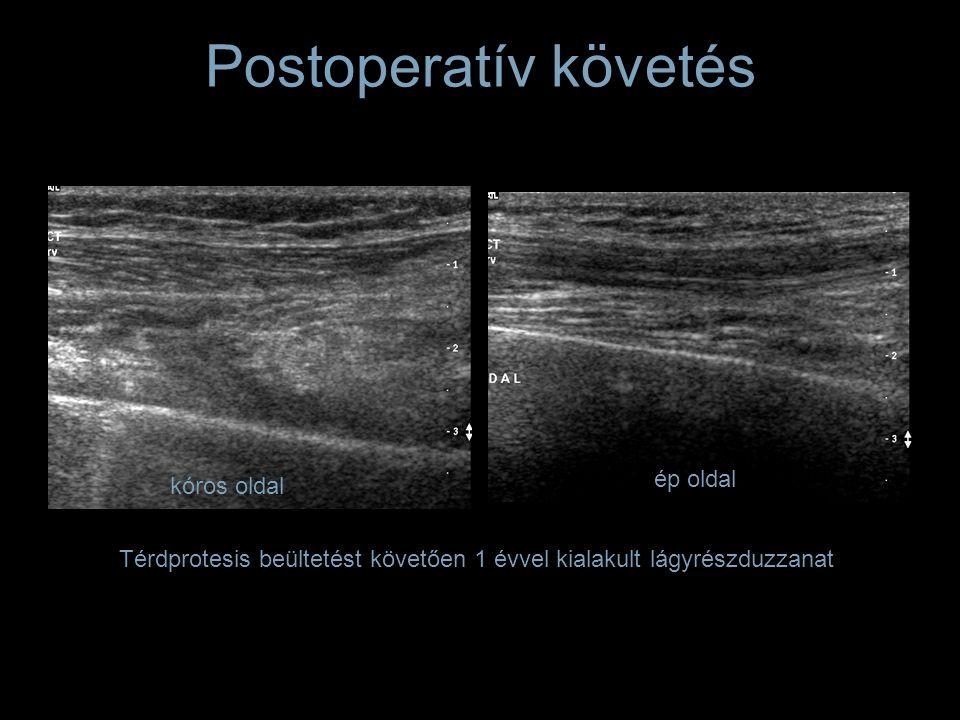 Postoperatív követés Térdprotesis beültetést követően 1 évvel kialakult lágyrészduzzanat kóros oldal ép oldal