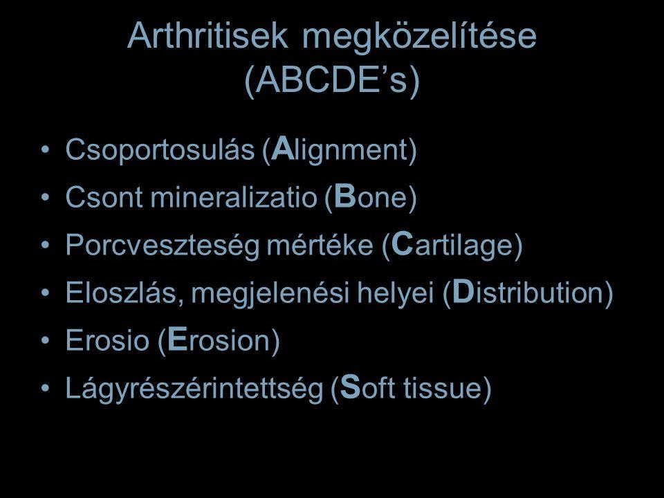 Arthritisek megközelítése (ABCDE's) Csoportosulás ( A lignment) Csont mineralizatio ( B one) Porcveszteség mértéke ( C artilage) Eloszlás, megjelenési