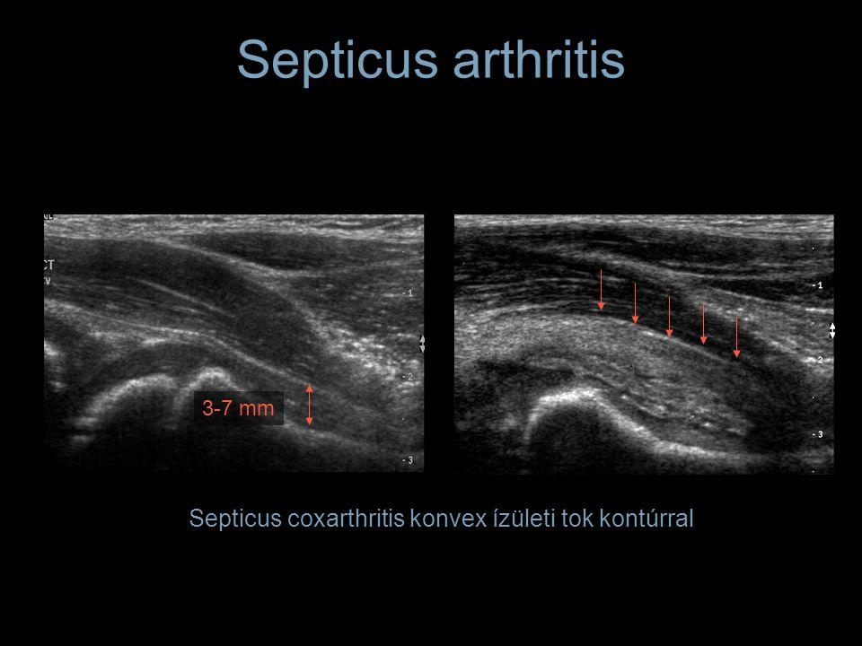 Septicus arthritis Septicus coxarthritis konvex ízületi tok kontúrral 3-7 mm