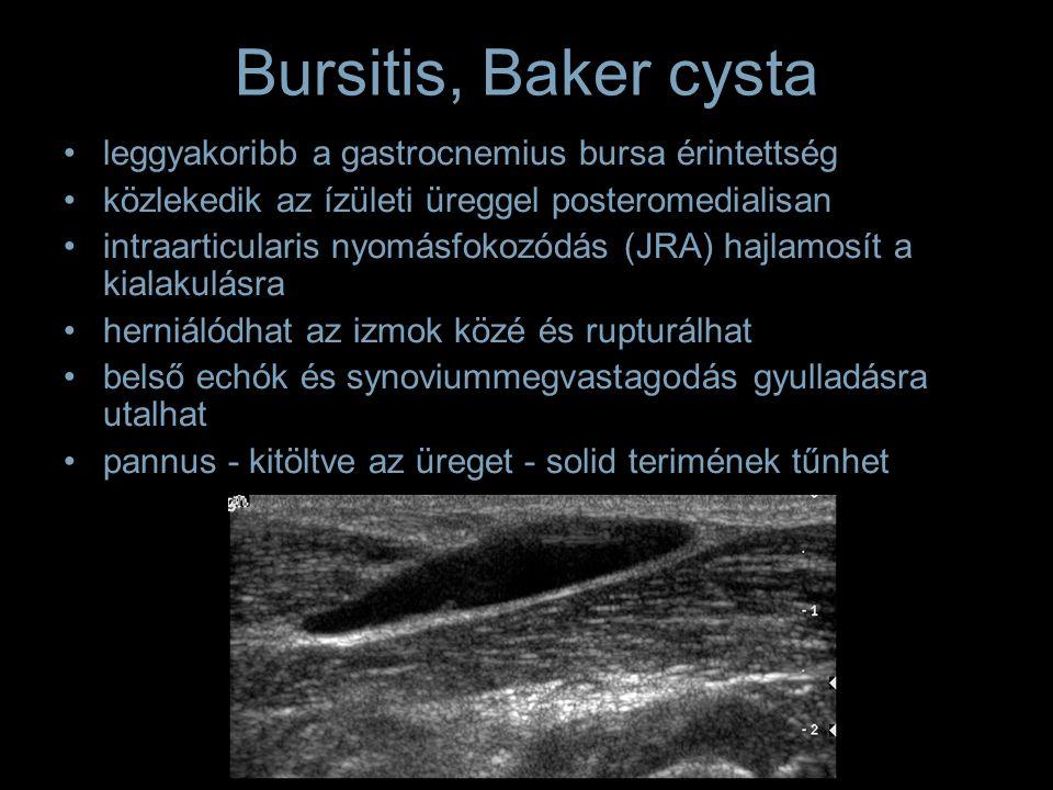 Bursitis, Baker cysta leggyakoribb a gastrocnemius bursa érintettség közlekedik az ízületi üreggel posteromedialisan intraarticularis nyomásfokozódás (JRA) hajlamosít a kialakulásra herniálódhat az izmok közé és rupturálhat belső echók és synoviummegvastagodás gyulladásra utalhat pannus - kitöltve az üreget - solid terimének tűnhet