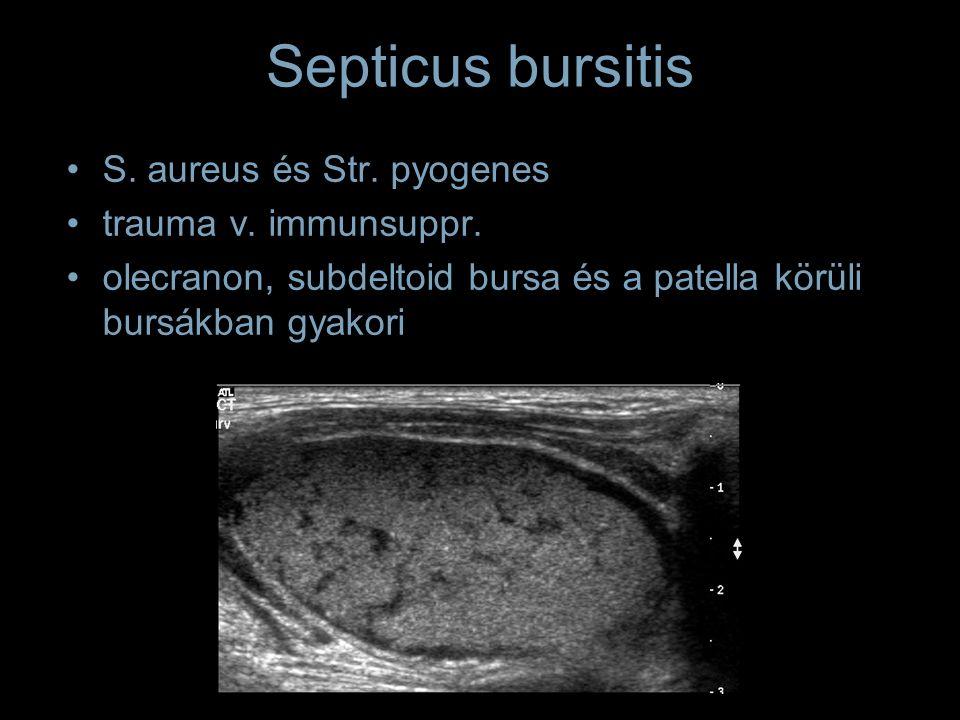 Septicus bursitis S. aureus és Str. pyogenes trauma v. immunsuppr. olecranon, subdeltoid bursa és a patella körüli bursákban gyakori