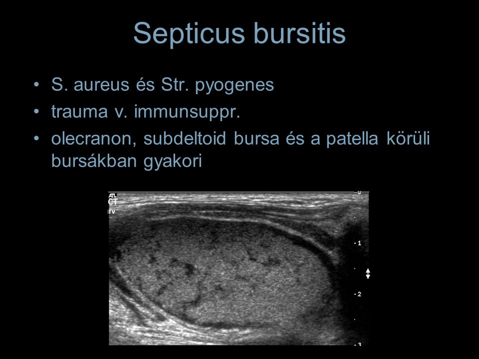 Septicus bursitis S. aureus és Str. pyogenes trauma v.