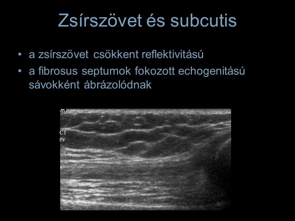 Zsírszövet és subcutis a zsírszövet csökkent reflektivitású a fibrosus septumok fokozott echogenitású sávokként ábrázolódnak