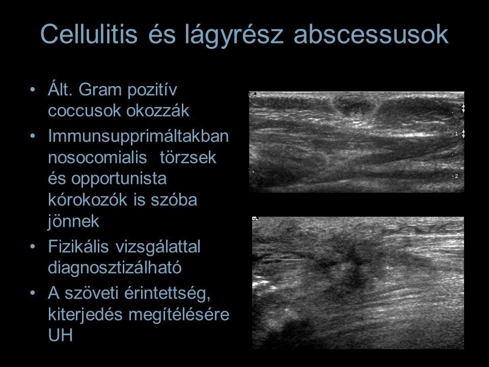 Cellulitis és lágyrész abscessusok Ált. Gram pozitív coccusok okozzák Immunsupprimáltakban nosocomialis törzsek és opportunista kórokozók is szóba jön