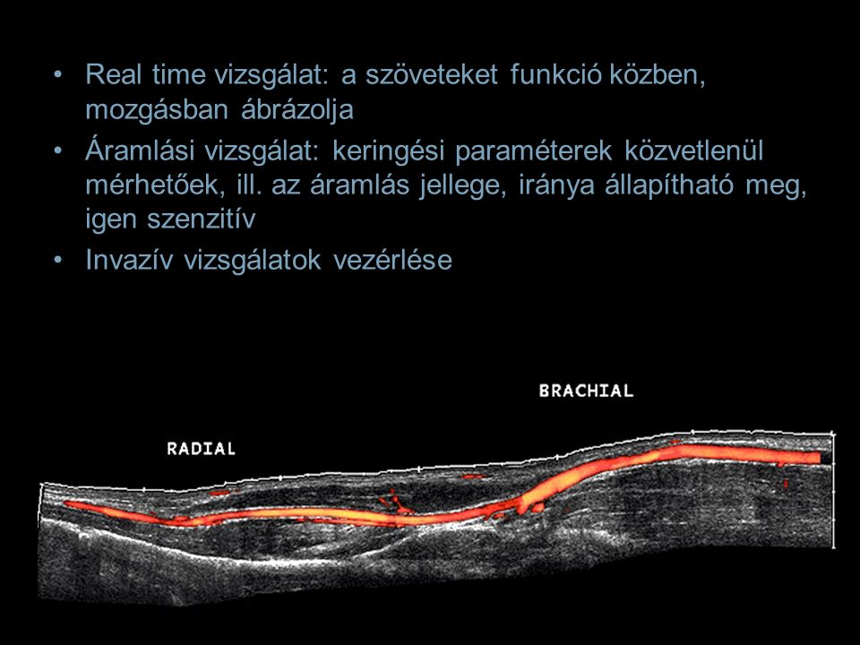 Color Doppler vizsgálat kis (< 2mm) érképletek csak Doppler módszerrel vizsgálhatóak vascularisatio változása fontos jel a kórfolyamatok progressziójának megítélésében, a gyógyulás követésében szövetspecifikus paraméterkek beállítása alapvető: –sebességtartomány –color tartomány –fali szűrő Centralis catheter körül kialakuló thrombosis