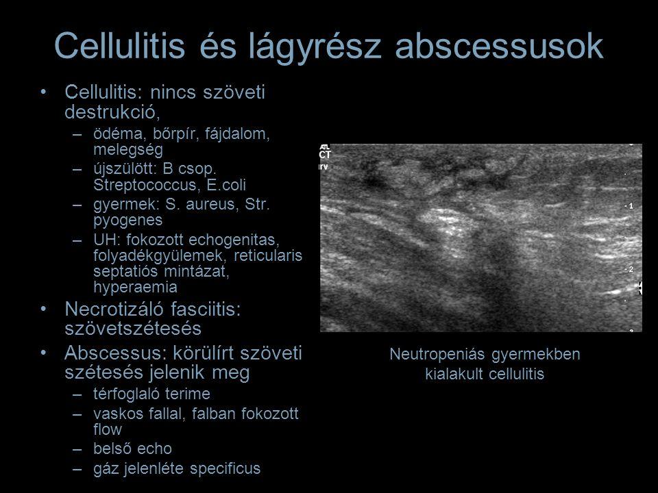 Cellulitis és lágyrész abscessusok Cellulitis: nincs szöveti destrukció, –ödéma, bőrpír, fájdalom, melegség –újszülött: B csop.