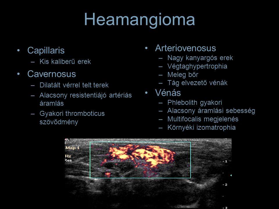 Heamangioma Capillaris –Kis kaliberű erek Cavernosus –Dilatált vérrel telt terek –Alacsony resistentiájó artériás áramlás –Gyakori thromboticus szövődmény Arteriovenosus –Nagy kanyargós erek –Végtaghypertrophia –Meleg bőr –Tág elvezető vénák Vénás –Phlebolith gyakori –Alacsony áramlási sebesség –Multifocalis megjelenés –Környéki izomatrophia