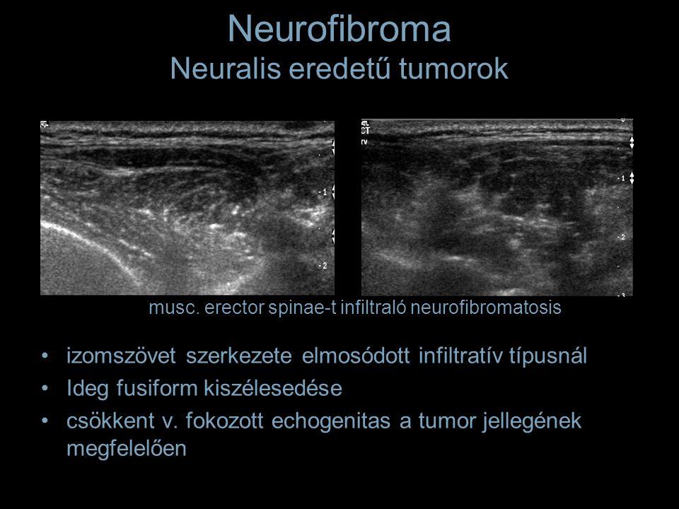 Neurofibroma Neuralis eredetű tumorok izomszövet szerkezete elmosódott infiltratív típusnál Ideg fusiform kiszélesedése csökkent v. fokozott echogenit