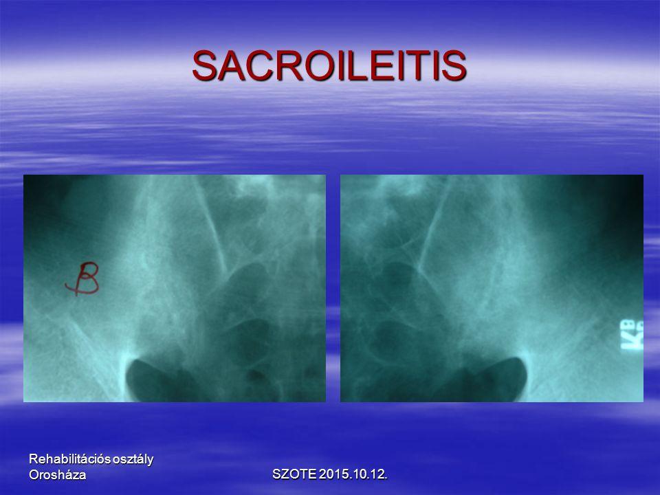 SACROILEITIS SZOTE 2015.10.12. Rehabilitációs osztály Orosháza