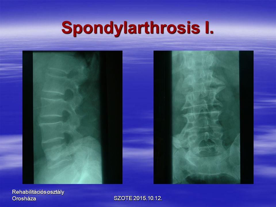Spondylarthrosis I. SZOTE 2015.10.12. Rehabilitációs osztály Orosháza