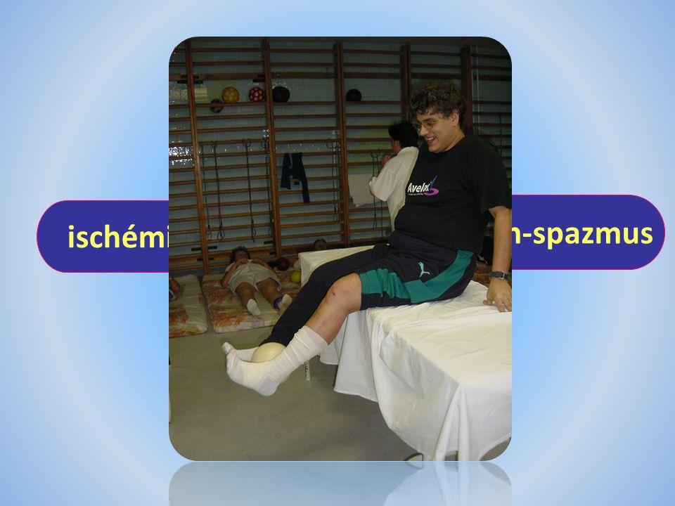 fájdalom immobilizáció ischémia izom-spazmus