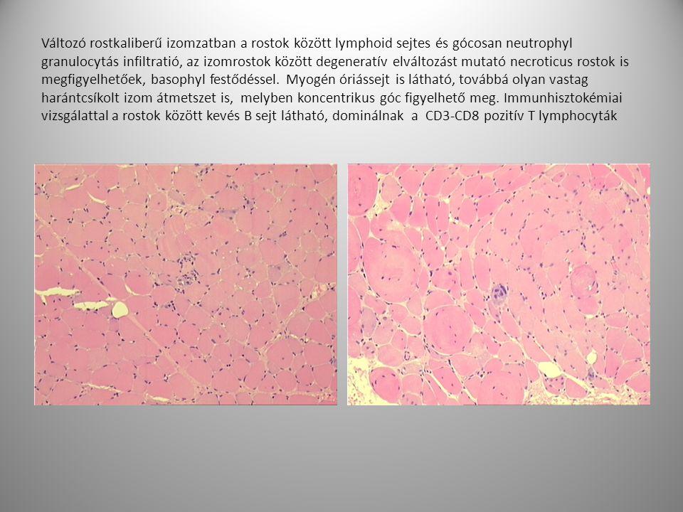 Változó rostkaliberű izomzatban a rostok között lymphoid sejtes és gócosan neutrophyl granulocytás infiltratió, az izomrostok között degeneratív elváltozást mutató necroticus rostok is megfigyelhetőek, basophyl festődéssel.