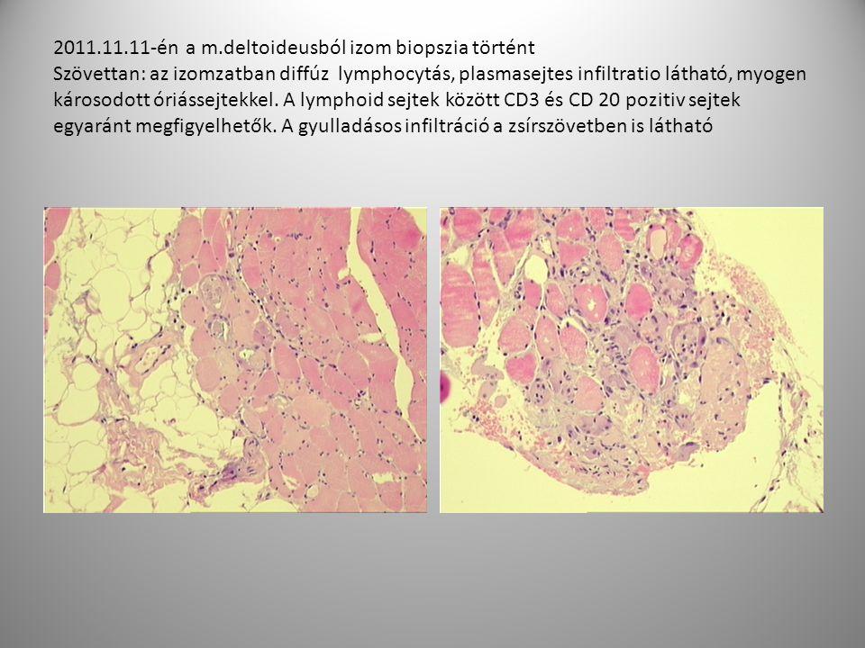 2011.11.11-én a m.deltoideusból izom biopszia történt Szövettan: az izomzatban diffúz lymphocytás, plasmasejtes infiltratio látható, myogen károsodott óriássejtekkel.