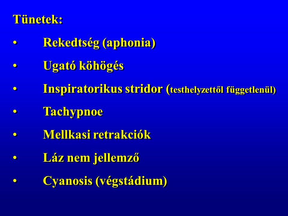 Tünetek: Rekedtség (aphonia) Ugató köhögés Inspiratorikus stridor ( testhelyzettől függetlenül) Tachypnoe Mellkasi retrakciók Láz nem jellemző Cyanosis (végstádium) Tünetek: Rekedtség (aphonia) Ugató köhögés Inspiratorikus stridor ( testhelyzettől függetlenül) Tachypnoe Mellkasi retrakciók Láz nem jellemző Cyanosis (végstádium)