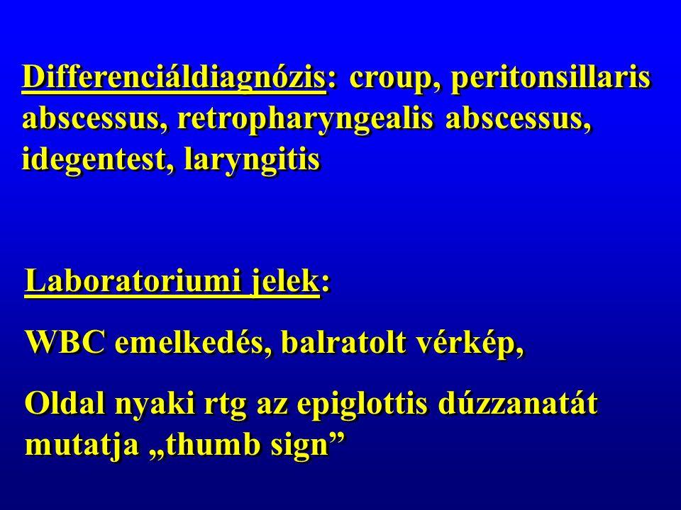 """Differenciáldiagnózis: croup, peritonsillaris abscessus, retropharyngealis abscessus, idegentest, laryngitis Laboratoriumi jelek: WBC emelkedés, balratolt vérkép, Oldal nyaki rtg az epiglottis dúzzanatát mutatja """"thumb sign Laboratoriumi jelek: WBC emelkedés, balratolt vérkép, Oldal nyaki rtg az epiglottis dúzzanatát mutatja """"thumb sign"""