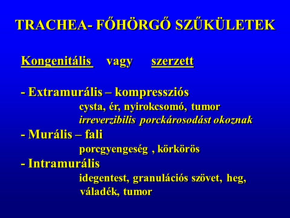 TRACHEA- FŐHÖRGŐ SZŰKÜLETEK Kongenitális vagy szerzett - Extramurális – kompressziós cysta, ér, nyirokcsomó, tumor irreverzibilis porckárosodást okoznak - Murális – fali porcgyengeség, körkörös - Intramurális idegentest, granulációs szövet, heg, váladék, tumor Kongenitális vagy szerzett - Extramurális – kompressziós cysta, ér, nyirokcsomó, tumor irreverzibilis porckárosodást okoznak - Murális – fali porcgyengeség, körkörös - Intramurális idegentest, granulációs szövet, heg, váladék, tumor