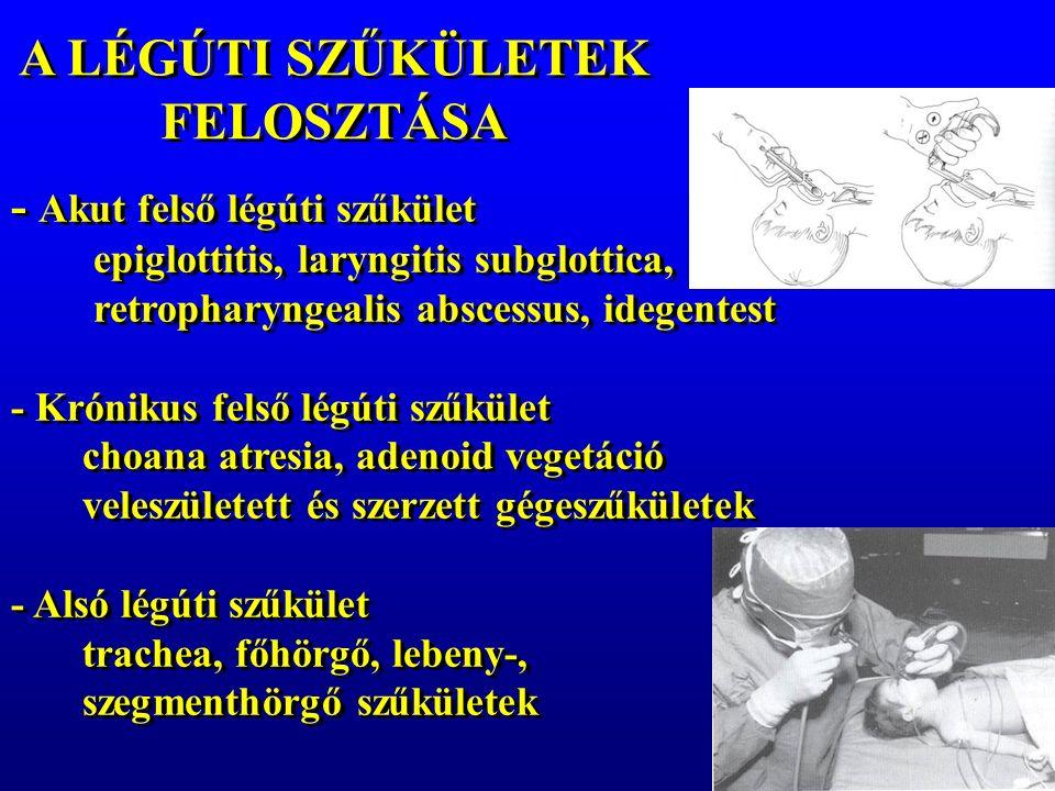 A LÉGÚTI SZŰKÜLETEK FELOSZTÁSA - Akut felső légúti szűkület epiglottitis, laryngitis subglottica, retropharyngealis abscessus, idegentest - Krónikus felső légúti szűkület choana atresia, adenoid vegetáció veleszületett és szerzett gégeszűkületek - Alsó légúti szűkület trachea, főhörgő, lebeny-, szegmenthörgő szűkületek - Akut felső légúti szűkület epiglottitis, laryngitis subglottica, retropharyngealis abscessus, idegentest - Krónikus felső légúti szűkület choana atresia, adenoid vegetáció veleszületett és szerzett gégeszűkületek - Alsó légúti szűkület trachea, főhörgő, lebeny-, szegmenthörgő szűkületek