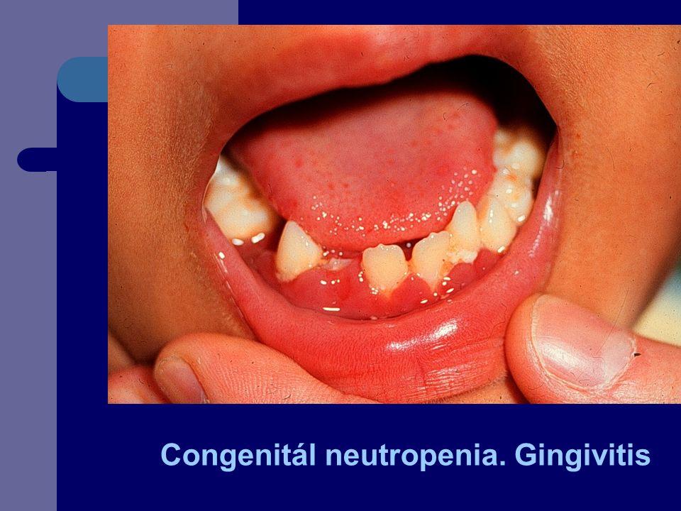Congenitál neutropenia. Gingivitis