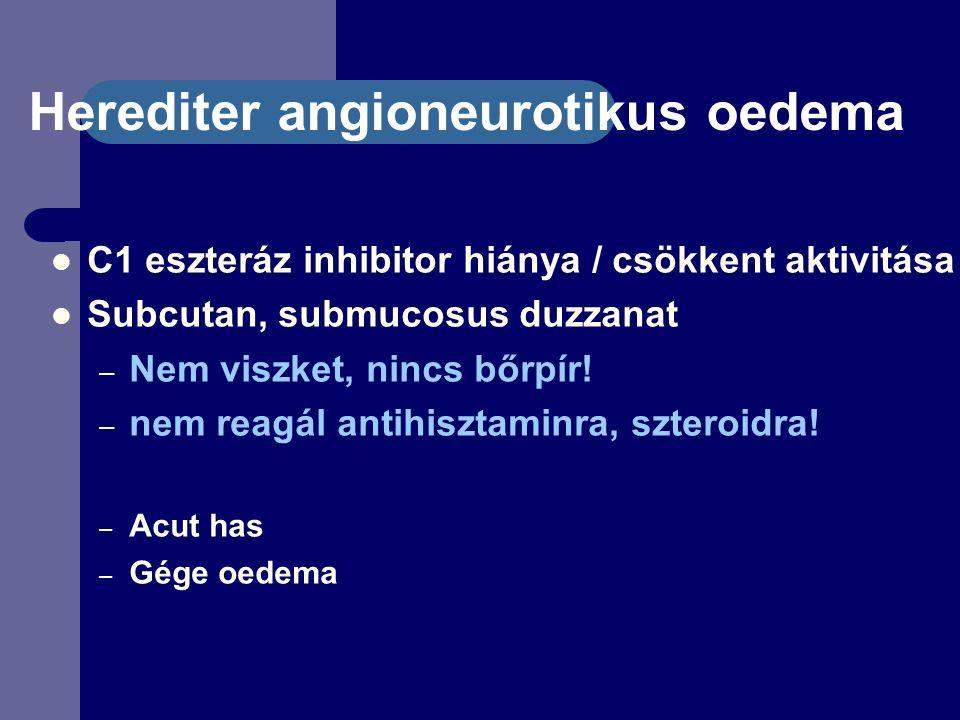 Herediter angioneurotikus oedema C1 eszteráz inhibitor hiánya / csökkent aktivitása Subcutan, submucosus duzzanat – Nem viszket, nincs bőrpír.