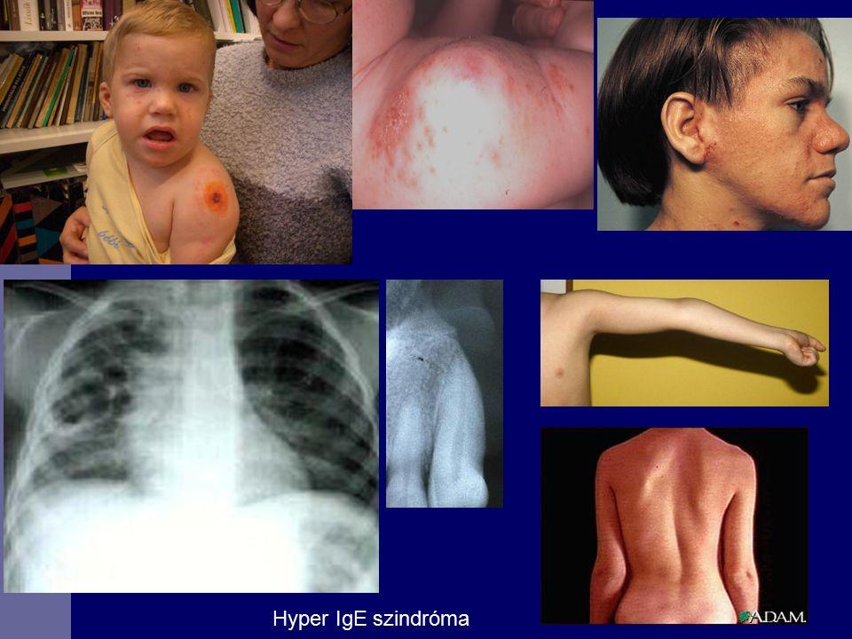 Hyper IgE szindróma