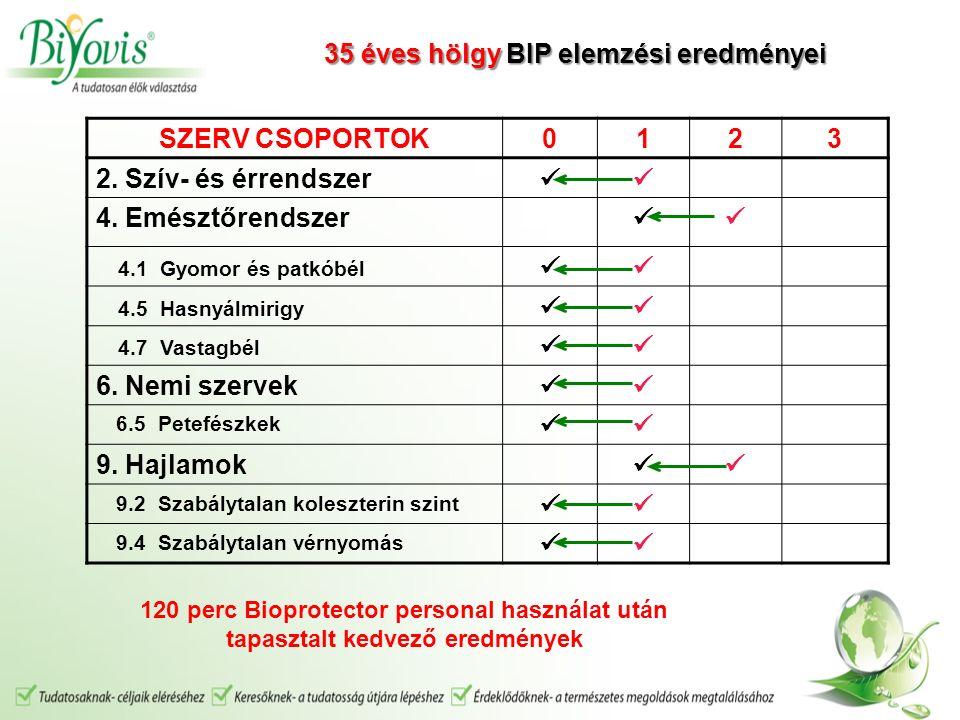 SZERV CSOPORTOK0123 2.Szív- és érrendszer 4.