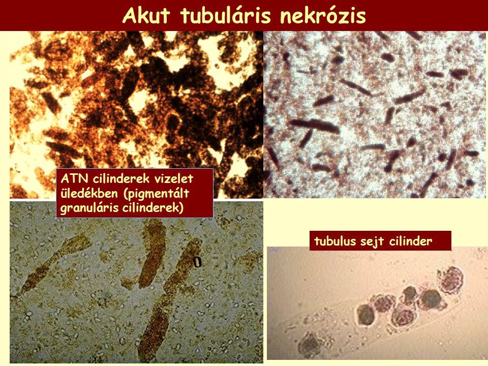 ATN cilinderek vizelet üledékben (pigmentált granuláris cilinderek) tubulus sejt cilinder Akut tubuláris nekrózis