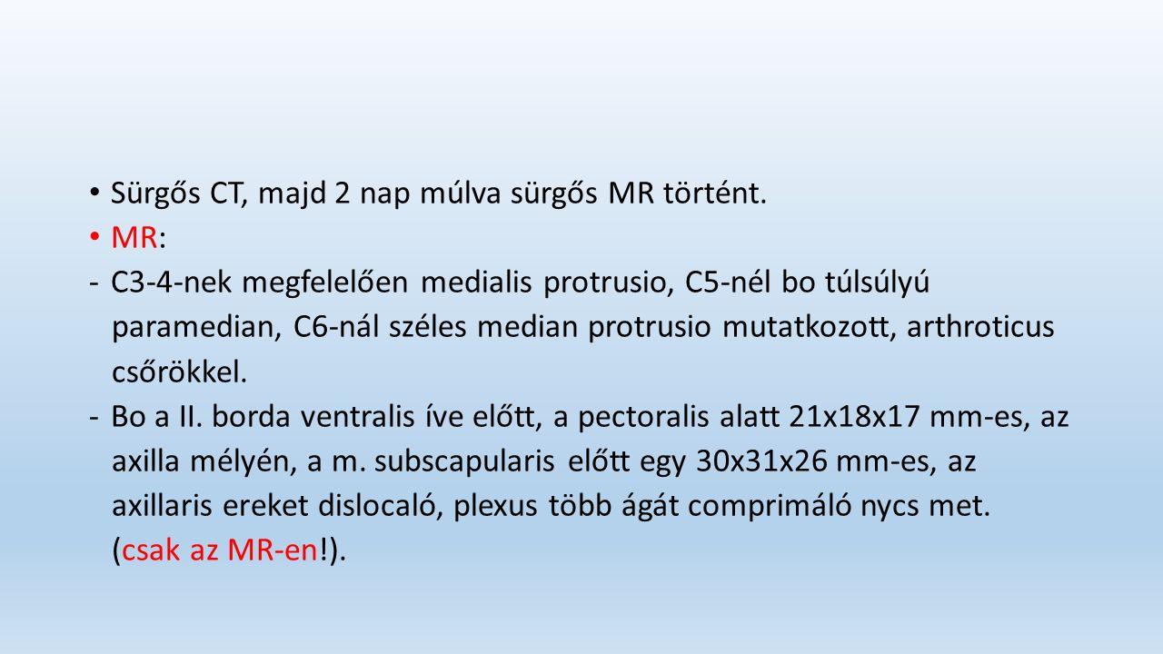 Sürgős CT, majd 2 nap múlva sürgős MR történt.