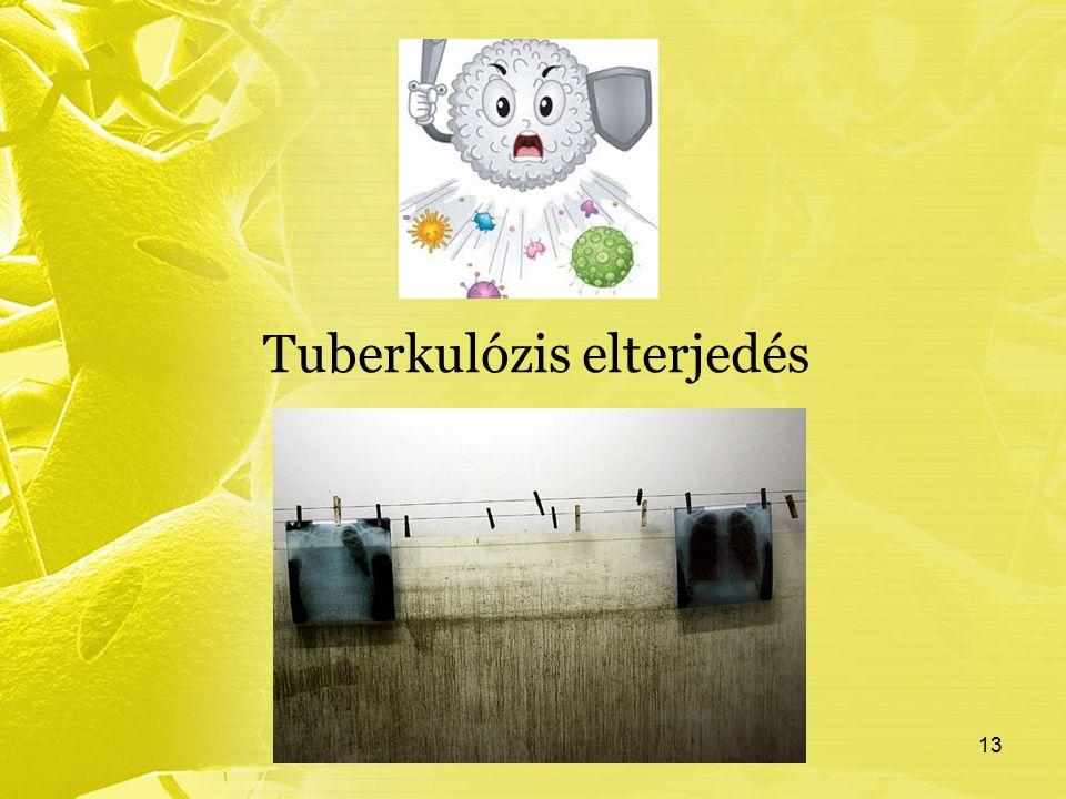 Tuberkulózis elterjedés 13