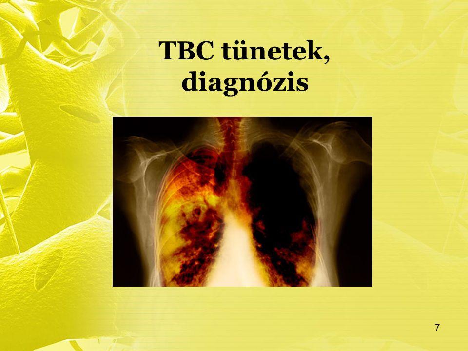 TBC tünetek, diagnózis 7