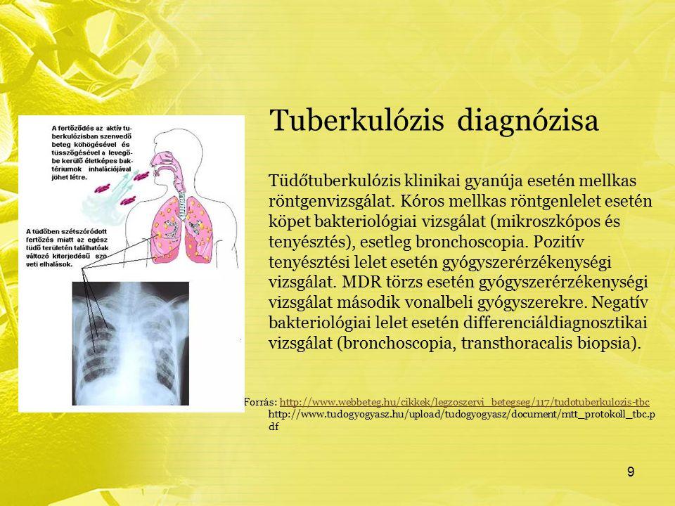 Tuberkulózis diagnózisa Tüdőtuberkulózis klinikai gyanúja esetén mellkas röntgenvizsgálat. Kóros mellkas röntgenlelet esetén köpet bakteriológiai vizs