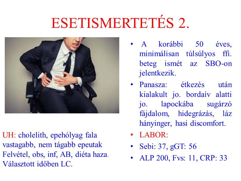 ESETISMERTETÉS 2. A korábbi 50 éves, minimálisan túlsúlyos ffi. beteg ismét az SBO-on jelentkezik. Panasza: étkezés után kialakult jo. bordaív alatti