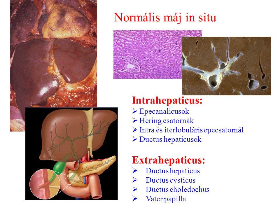 Normális máj in situ Intrahepaticus:  Epecanalicusok  Hering csatornák  Intra és iterlobuláris epecsatornál  Ductus hepaticusok Extrahepaticus: 