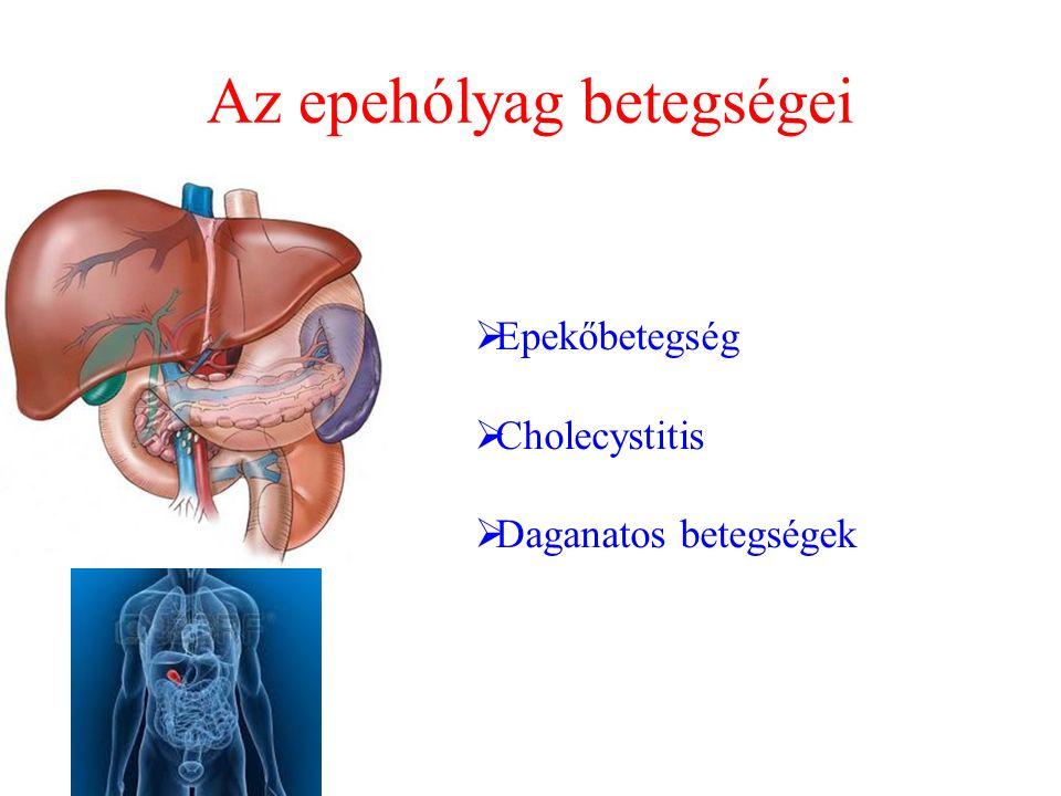 Az epehólyag betegségei  Epekőbetegség  Cholecystitis  Daganatos betegségek