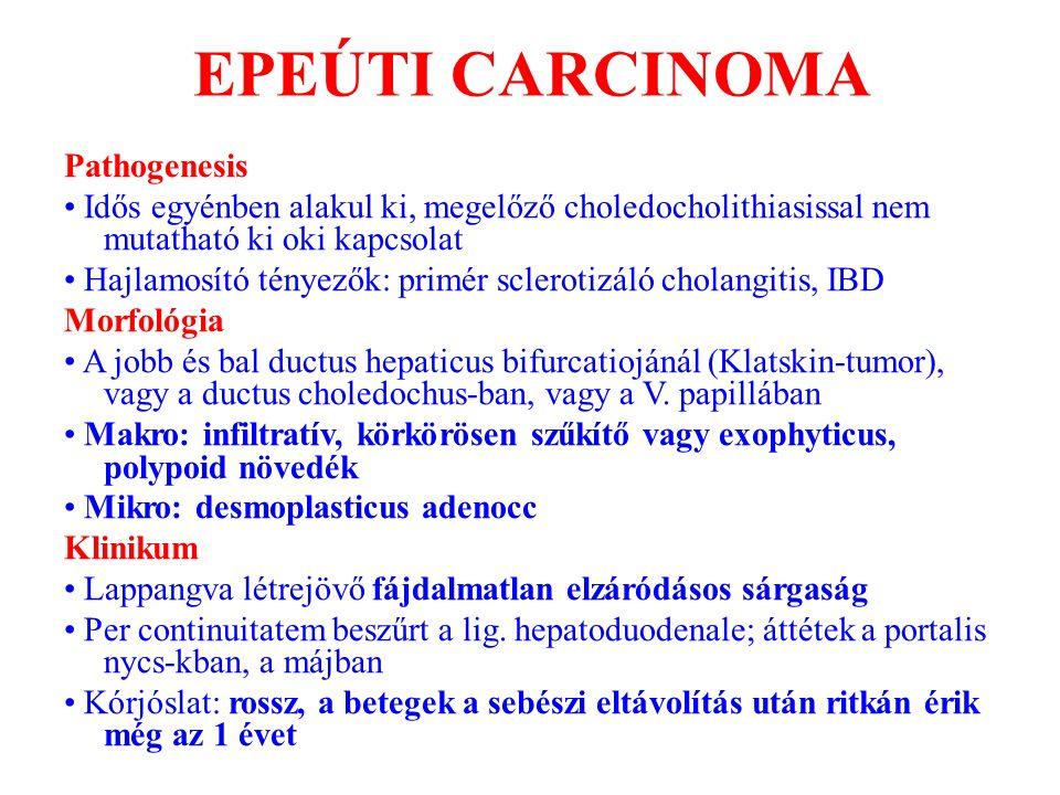 EPEÚTI CARCINOMA Pathogenesis Idős egyénben alakul ki, megelőző choledocholithiasissal nem mutatható ki oki kapcsolat Hajlamosító tényezők: primér scl