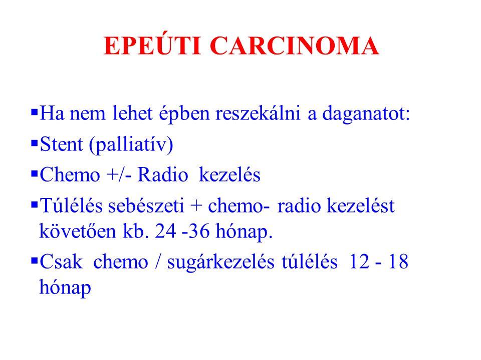 EPEÚTI CARCINOMA  Ha nem lehet épben reszekálni a daganatot:  Stent (palliatív)  Chemo +/- Radio kezelés  Túlélés sebészeti + chemo- radio kezelés