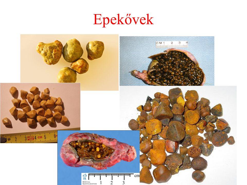 Klinikum, lefolyás szerint  Enyhe: interstitialis (oedemás) pancreatitis  Súlyos: necrotizáló (haemorrhagiás) pancreatitis