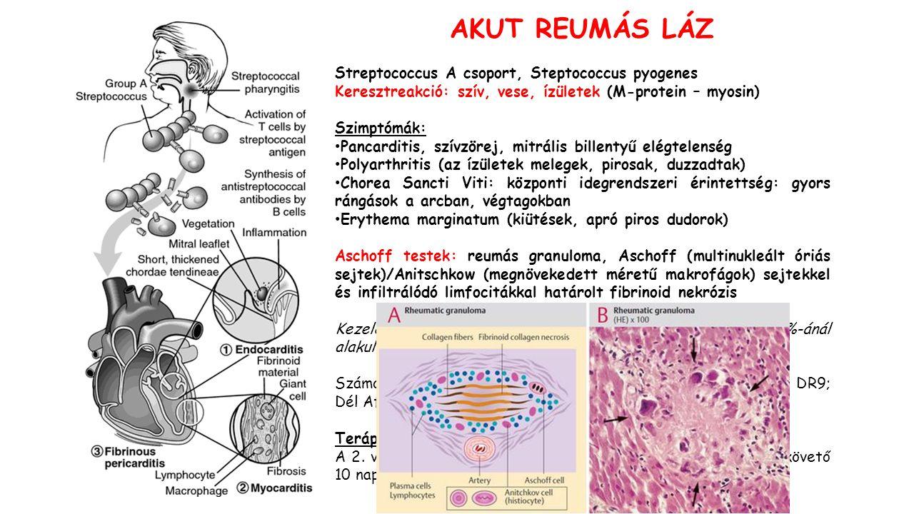 AKUT REUMÁS LÁZ Streptococcus A csoport, Steptococcus pyogenes Keresztreakció: szív, vese, ízületek (M-protein – myosin) Szimptómák: Pancarditis, szívzörej, mitrális billentyű elégtelenség Polyarthritis (az ízületek melegek, pirosak, duzzadtak) Chorea Sancti Viti: központi idegrendszeri érintettség: gyors rángások a arcban, végtagokban Erythema marginatum (kiütések, apró piros dudorok) Aschoff testek: reumás granuloma, Aschoff (multinukleált óriás sejtek)/Anitschkow (megnövekedett méretű makrofágok) sejtekkel és infiltrálódó limfocitákkal határolt fibrinoid nekrózis Kezeletlen Streptococcalis pharingytis esetén a betegek 3%-ánál alakul ki reumás láz.
