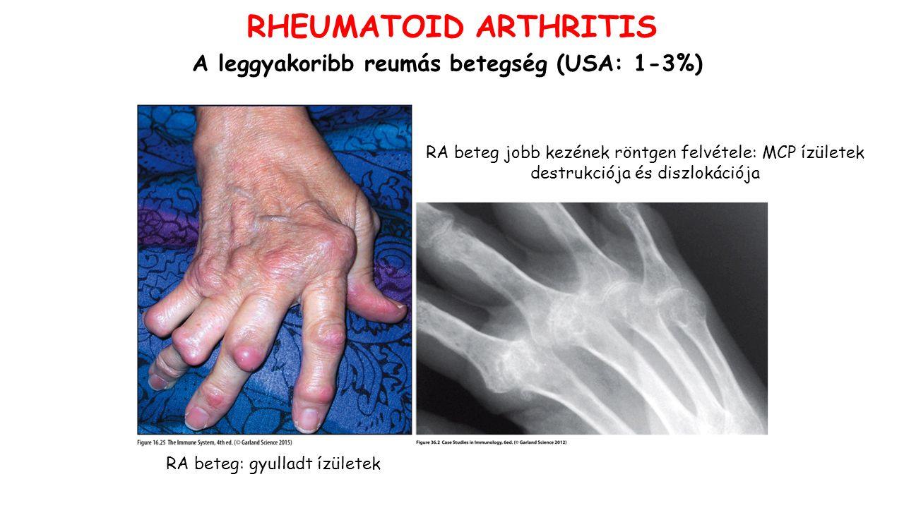RA beteg: gyulladt ízületek RA beteg jobb kezének röntgen felvétele: MCP ízületek destrukciója és diszlokációja RHEUMATOID ARTHRITIS A leggyakoribb reumás betegség (USA: 1-3%)