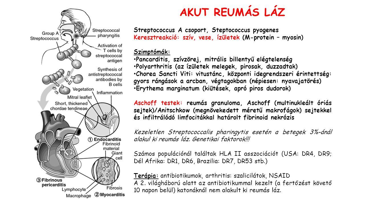 AKUT REUMÁS LÁZ Streptococcus A csoport, Steptococcus pyogenes Keresztreakció: szív, vese, ízületek (M-protein – myosin) Szimptómák: Pancarditis, szívzörej, mitrális billentyű elégtelenség Polyarthritis (az ízületek melegek, pirosak, duzzadtak) Chorea Sancti Viti: vitustánc, központi idegrendszeri érintettség: gyors rángások a arcban, végtagokban (népiesen: nyavajatörés) Erythema marginatum (kiütések, apró piros dudorok) Aschoff testek: reumás granuloma, Aschoff (multinukleált óriás sejtek)/Anitschkow (megnövekedett méretű makrofágok) sejtekkel és infiltrálódó limfocitákkal határolt fibrinoid nekrózis Kezeletlen Streptococcalis pharingytis esetén a betegek 3%-ánál alakul ki reumás láz.