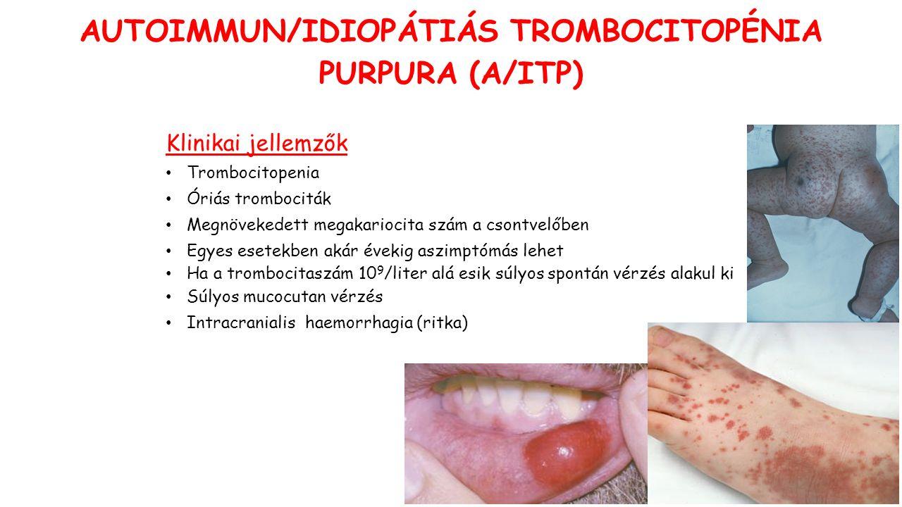 Klinikai jellemzők Trombocitopenia Óriás trombociták Megnövekedett megakariocita szám a csontvelőben Egyes esetekben akár évekig aszimptómás lehet Ha