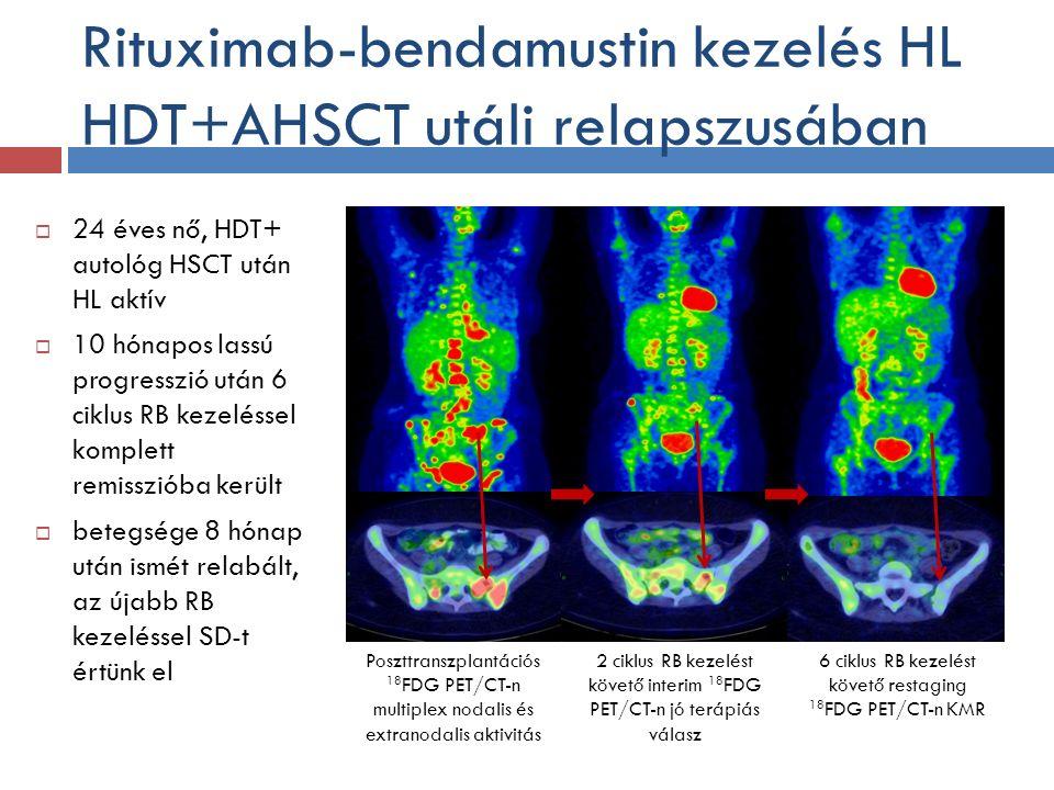 Rituximab-bendamustin kezelés HL HDT+AHSCT utáli relapszusában  24 éves nő, HDT+ autológ HSCT után HL aktív  10 hónapos lassú progresszió után 6 ciklus RB kezeléssel komplett remisszióba került  betegsége 8 hónap után ismét relabált, az újabb RB kezeléssel SD-t értünk el Poszttranszplantációs 18 FDG PET/CT-n multiplex nodalis és extranodalis aktivitás 2 ciklus RB kezelést követő interim 18 FDG PET/CT-n jó terápiás válasz 6 ciklus RB kezelést követő restaging 18 FDG PET/CT-n KMR B/3