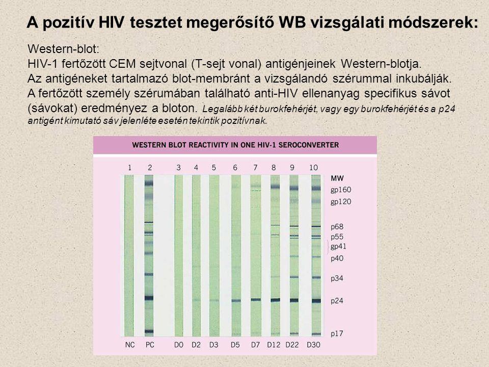 A pozitív HIV tesztet megerősítő WB vizsgálati módszerek: Western-blot: HIV-1 fertőzött CEM sejtvonal (T-sejt vonal) antigénjeinek Western-blotja. Az