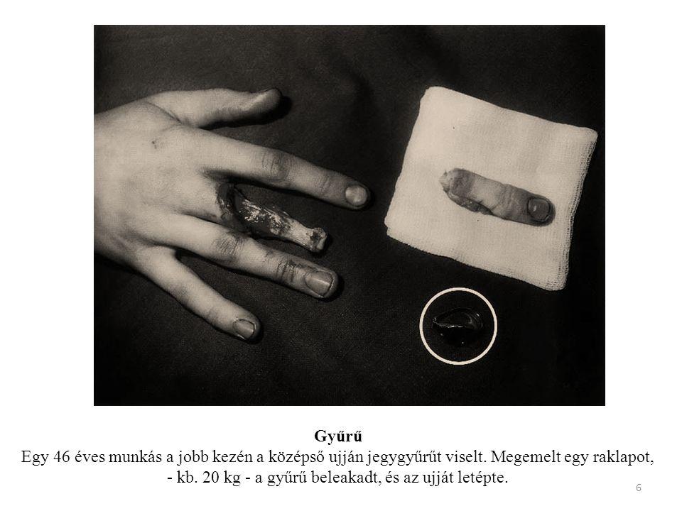 Gyűrű Egy 46 éves munkás a jobb kezén a középső ujján jegygyűrűt viselt.