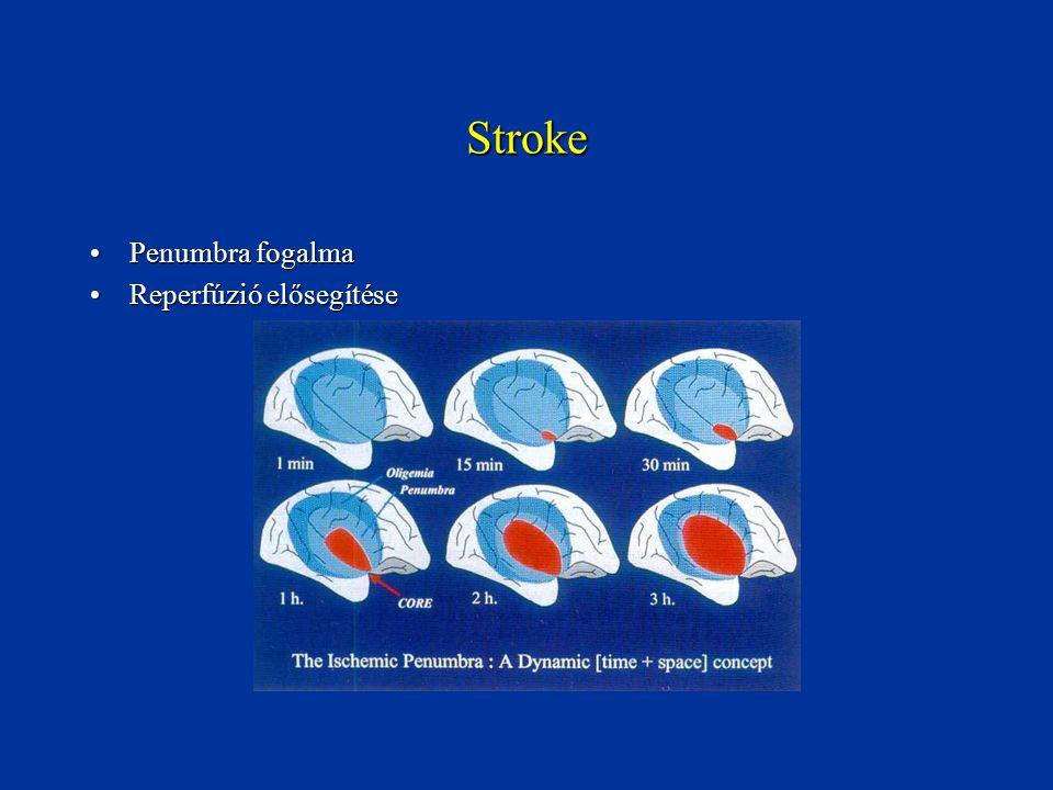 Stroke Penumbra fogalmaPenumbra fogalma Reperfúzió elősegítéseReperfúzió elősegítése