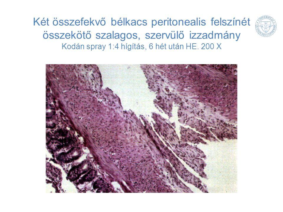 Két összefekvő bélkacs peritonealis felszínét összekötő szalagos, szervülő izzadmány Kodán spray 1:4 hígítás, 6 hét után HE. 200 X