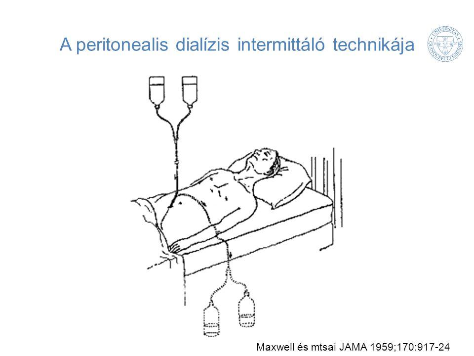 A peritonealis dialízis intermittáló technikája Maxwell és mtsai JAMA 1959;170:917-24